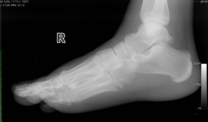 Repetitive Overuse Injuries in Runners: Causes and Prevention Strategies