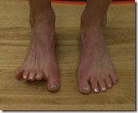 Criteria For a Safe Transition to Minimalist Shoes or Barefoot Running: Thoughts From Jay Dicharry, PT