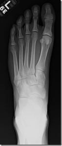 Metatarsal Stress Fractures in Runners Part II: Thoughts From a Radiologist