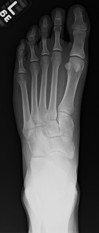 Metatarsal Stress Fractures in Runners Part II: Thoughts