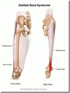 Running Shoes and Iliotibial Band Syndrome (ITBS): One Runner's Story