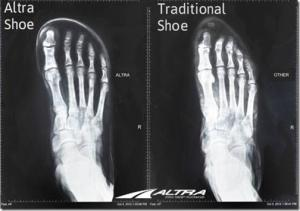 Your Feet in Wide vs. Narrow Shoes: Great Visual From Altra Running!