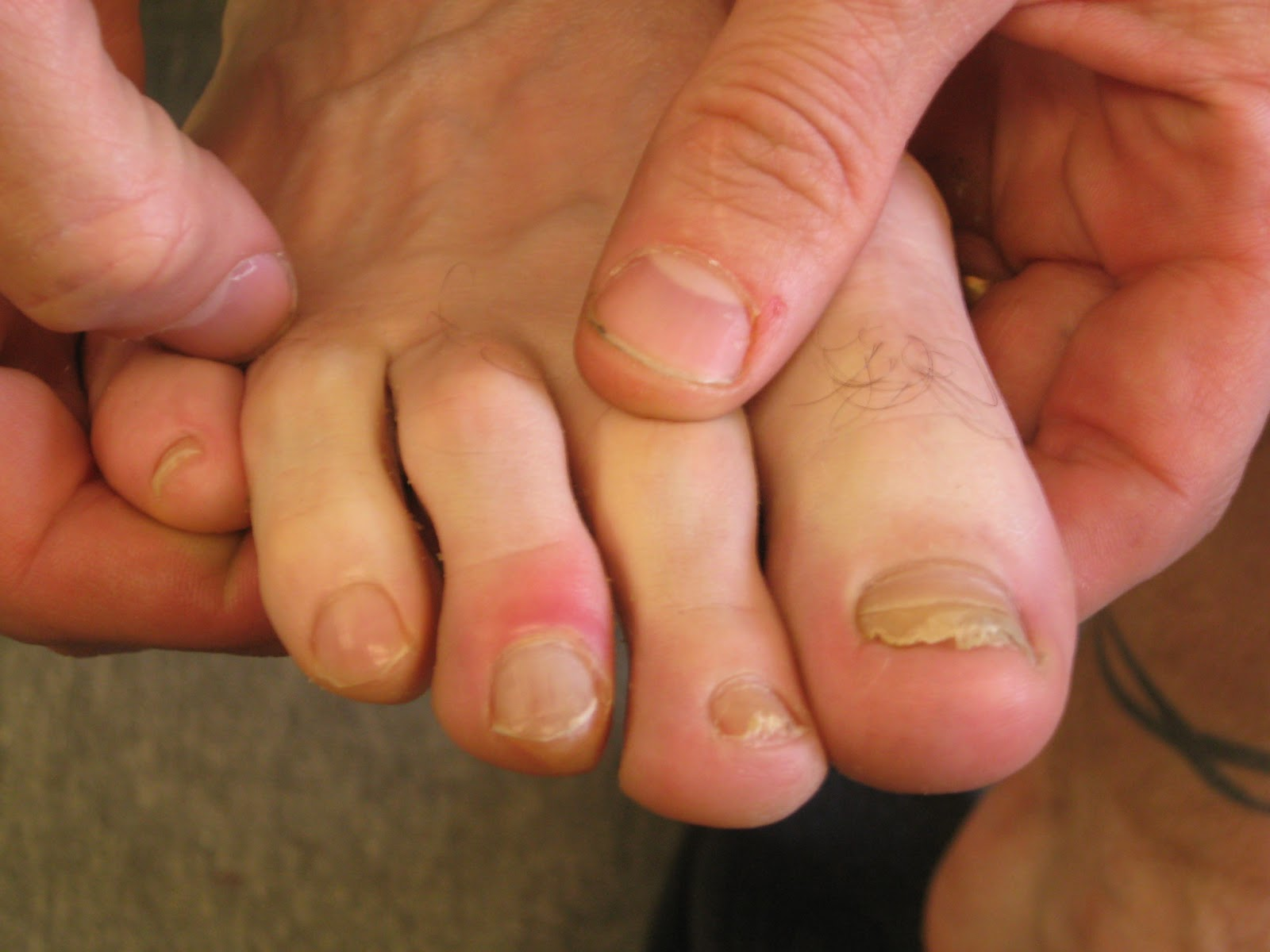 Dirty Runner  Blisters  U2013 Causes And Prevention
