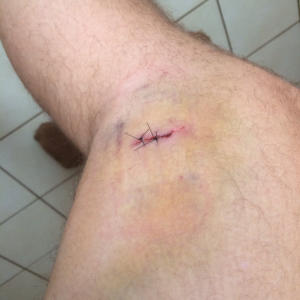 Dog Bite Stitches