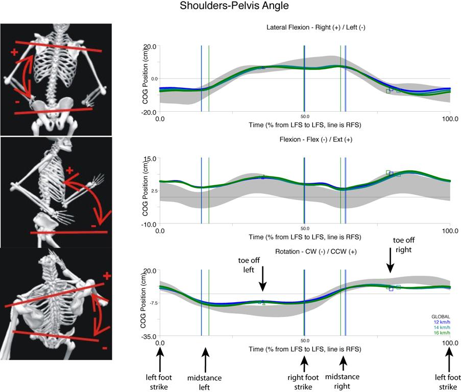 Shoulder-pelvis angle